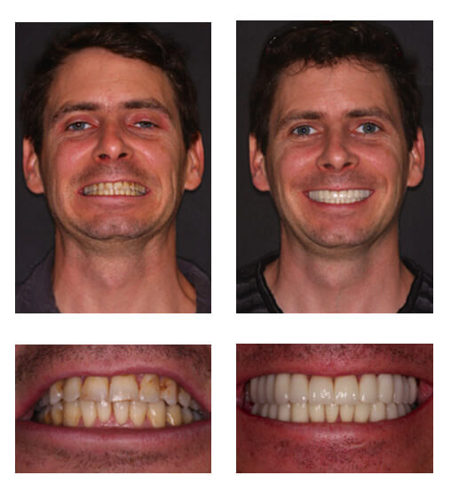 Smile Gallery International Center For Dental Excellence Florida