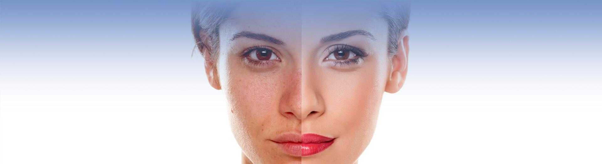 Closeup of woman's face facial rejuvenation before after comparison