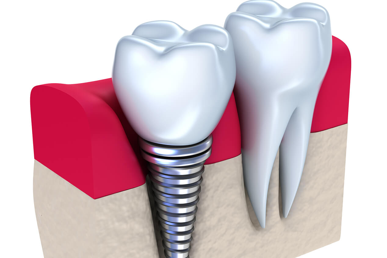 Dental Implant Treatment in Fort Lauderdale FL Area